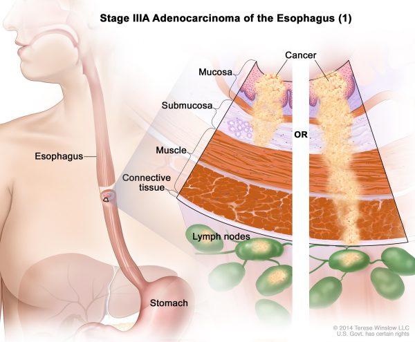 Giai đoạn tiến triển ung thư là một trong những yếu tố quan trọng quyết định đến cơ hội sống của bệnh nhân ung thư thực quản