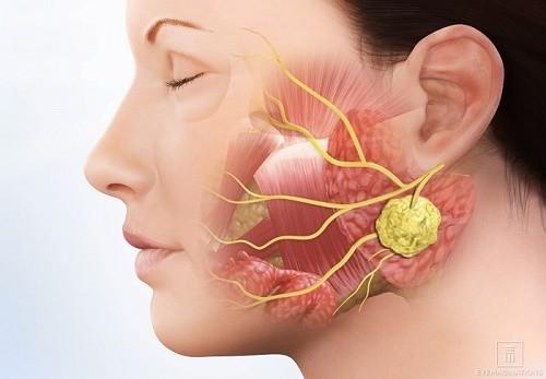 Ung thư tuyến nước bọt không lây từ người bệnh sang người khỏe mạnh