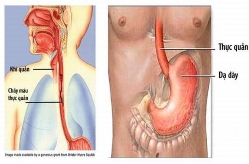 Giãn tĩnh mạch thực quản cần được phát hiên sớm và điều trị hiệu quả