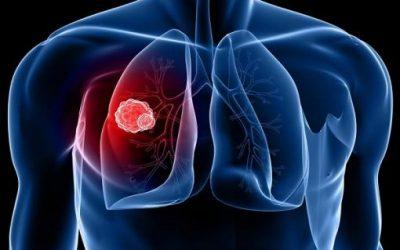 Bệnh u phổi có chữa được không?