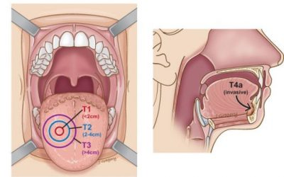 Hình ảnh ung thư lưỡi giai đoạn đầu