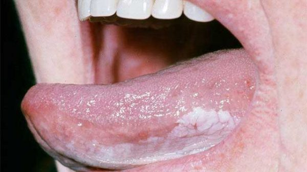 Ung thư lưỡi xuất phát ở phần lưỡi di động hay cố định (đáy lưỡi). Đây là loại ung thư hay gặp nhất và chiếm khoảng 30 – 50% trong các ung thư của khoang miệng. Bệnh có thể gặp ở nhiều đối tượng khác nhau nhưng thường gặp ở người trên 50 tuổi. Tỷ lệ mắc bệnh ung thư lưỡi ở nam giới cao gấp khoảng 2 lần nữ giới.