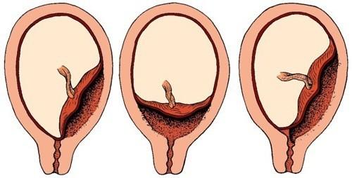Sót rau, sót thai sau sinh, sau sảy thai rất nguy hiểm.