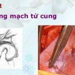 Phẫu thuật thắt động mạch tử cung trong cấp cứu sản phụ khoa