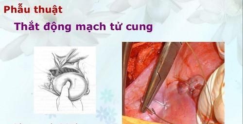 Phẫu thuật thắt động mạch tử cung trong cấp cứu sản phụ khoa là gì?