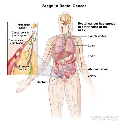 Ung thư trực tràng giai đoạn cuối có khả năng di căn đến nhiều cơ quan như phổi, gan, cổ tử cung (nữ)...