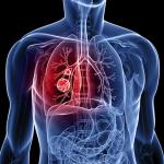 Bệnh u phổi có lây không?