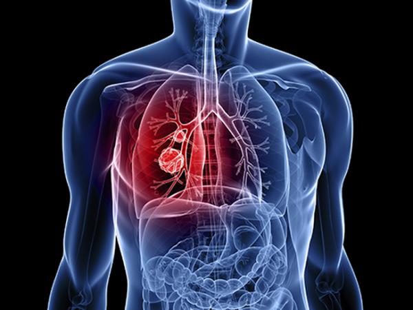 Ung thư phổi không lây từ người bệnh sang người khỏe mạnh