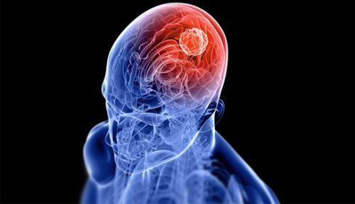 Ung thư dạ dày di căn não xảy ra ở giai đoạn cuối ung thư