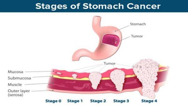 Ung thư dạ dày giai đoạn cuối có khả năng di căn đến gan và nhiều cơ quan khác