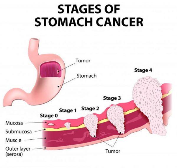 Giai đoạn tiến triển ung thư dạ dày