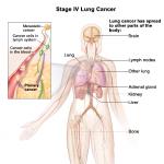 Ung thư phổi di căn gan