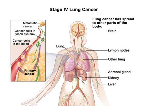 Ung thư phổi giai đoạn cuối có khả năng di căn đến nhiều cơ quan, trong đó có xương