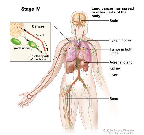 Ung thư phổi giai đoạn cuối có khả năng di căn rộng đến hai bên phổi, não, gan, xương...