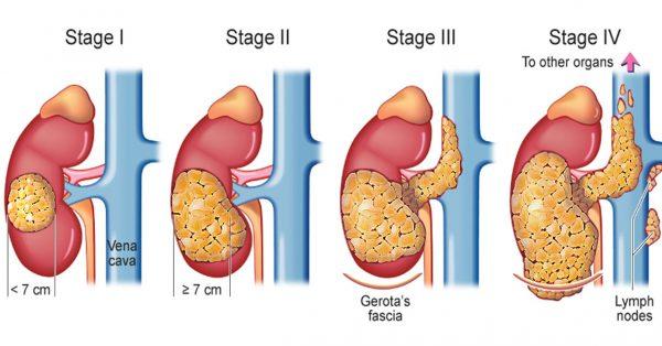 Quá trình phát triển ung thư thận