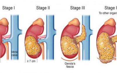 Ung thư thận giai đoạn cuối có chữa được không?