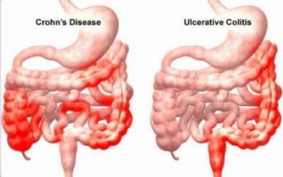 Viêm đường ruột nên ăn gì?