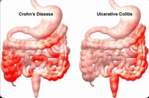 Viêm đường ruột cần được phát hiện sớm và điều trị hiệu quả