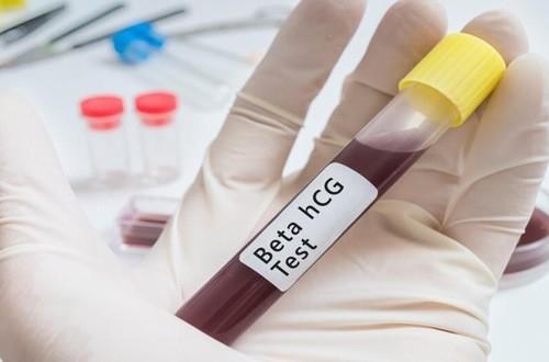 Xét nghiệm máu giúp phát hiện sớm có thai
