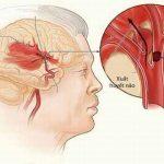 Xuất huyết não ai dễ mắc?