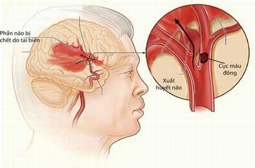 Xuất huyết não nếu không được cấp cứu kịp thời có thể dẫn đến nguy cơ tử vong cao