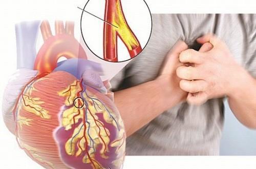 Các bệnh lý mạch vành đều nguy hiểm có thể đe dọa tính mạng người bệnh cần được chủ động thăm khám và điều trị hiệu quả