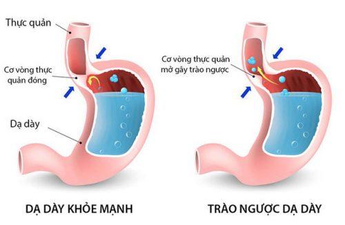 Những người bị trào ngược dạ dày thực quản có nguy cơ mắc ung thư thực quản cao hơn những người bình thường