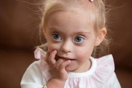 Trẻ bị bệnh down có biểu hiện bất thường về hình thái và chức năng.