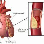 Bệnh mạch vành ở người cao tuổi