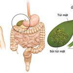 Bệnh sỏi mật và những điều cần biết