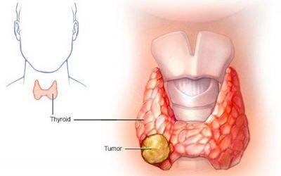 Bệnh ung thư tuyến giáp có chữa được không?