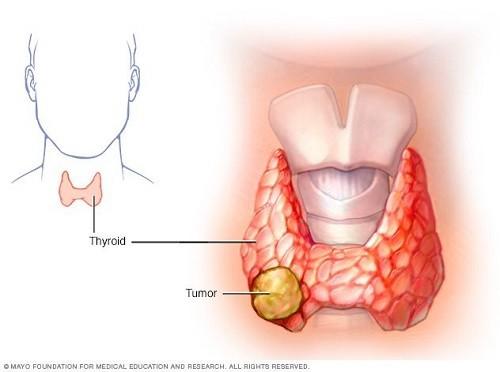 Ung thư tuyến giáp có thể chữa khỏi nếu phát hiện sớm