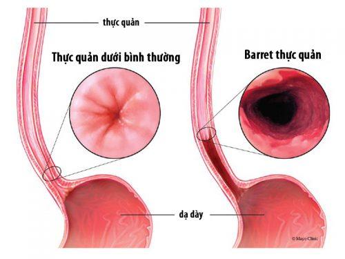 Viêm loét thực quản là một trong những biến chứng của trào ngược dạ dày thực quản
