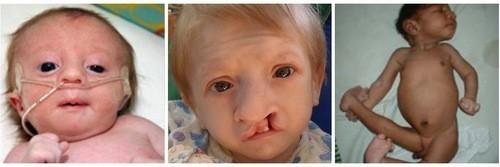 Trẻ sinh ra với những bất thường nghiêm trọng ở ngoại hình, thiểu năng trí tuệ...