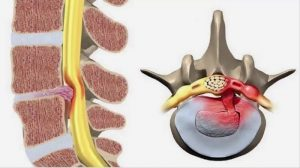 Thoát vị đĩa đệm là hiện tượngcác bao xơ ở cột sống trở nên yếu đi khiến nhân nhầy thoát ra dẫn đến chèn ép lên tủy sống hay rễ thần kinh xung quanh.
