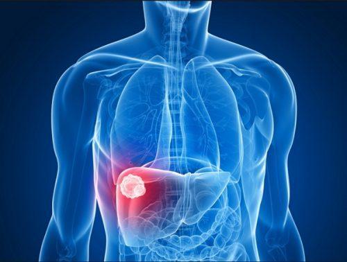 Tỷ lệ mắc ung thư gan ở nước ta cao hàng đầu thế giới