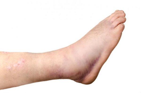 Nếu tim không làm tốt việc bơm máu thì chân sẽ có hiện tượng sưng lên.