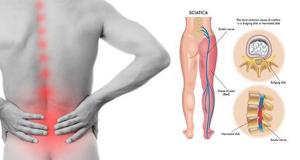 Đau thần kinh tọa là là một tình trạng đau lưng gây ra do dây thần kinh tọa bị chèn ép hoặc tổn thương.