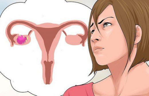 Ung thư buồng trứng có thể gặp ở nhiều độ tuổi, phổ biến ở nữ giới trên 40 tuổi