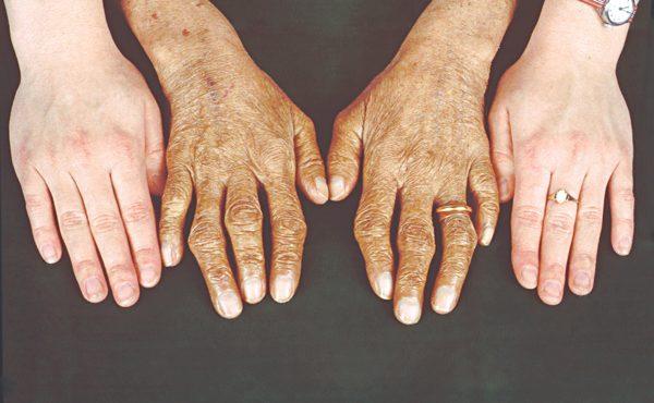 Thừa sắt có thể gây nên bệnh lý xương khớp