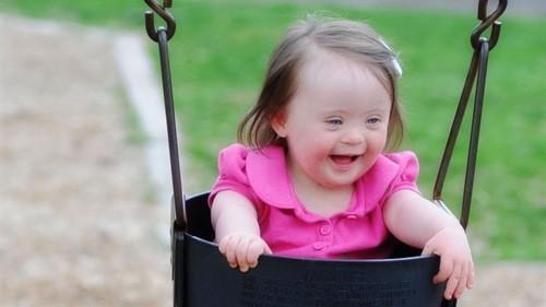 Trisomy 21 gây ra hội chứng Down ở người