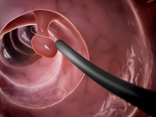 Polyp là dạng u dạ dày lành tính thường gặp