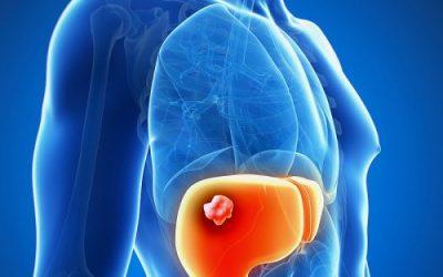 Ung thư gan nguyên phát là gì?