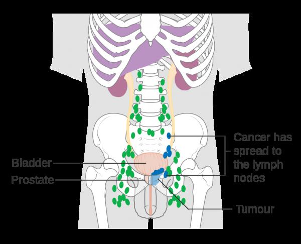 Ung thư tuyến tiền liệt có khả năng di căn đến hạch vùng và các cơ quan xa