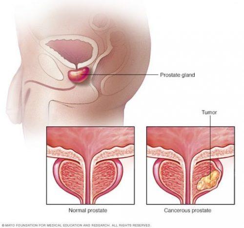 Ung thư tuyến tiền liệt có tiên lượng tốt ở giai đoạn sớm