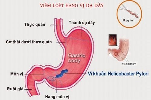 Viêm hang vị dạ dày là bệnh phổ biến nhiều người mắc phải