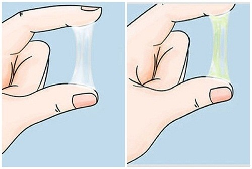 Khí hư ra nhiều bất thường là triệu chứng viêm lộ tuyến cổ tử cung