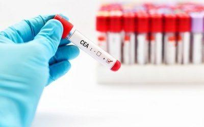 Xét nghiệm máu có phát hiện ung thư đại trực tràng không?