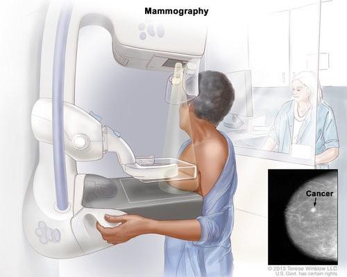 Chụp nhũ ảnh là phương tiện phổ biến để sàng lọc, đánh giá ban đầu một trường hợp ung thư vú