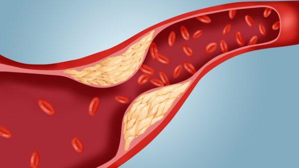 Cholesterol tăng cao không kiểm soát được có thể dẫn đến xơ vữa động mạch, xuất hiện khi các mảng bám tích tụ trong thành động mạch